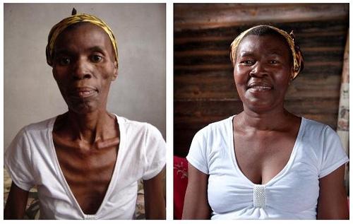 El Efecto Lázaro una esperanza en la lucha contra el SIDA