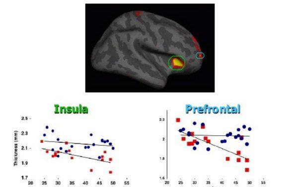 Medita para desarrollar tu cerebro