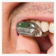 SoundBite el audífono que permite escuchar por los dientes