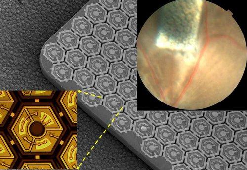 Matriz de Chips fotovoltaicos que se implantan en la retina. Foto Universidad de Standford.