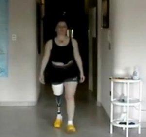 Ana Iris caminando con su prótesis