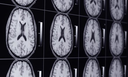 ¿Cómo olvida el cerebro un recuerdo desagradable?