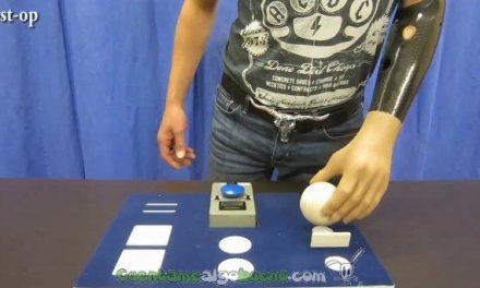 Implantan manos biónicas a pacientes que las controlan con la mente