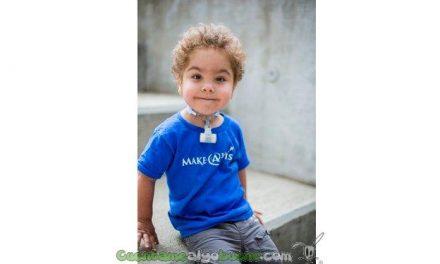 Consiguen que tres bebés respiren con dispositivos creados por impresión 3D