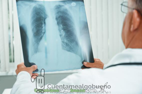 Avance médico frente a la hipertensión pulmonar