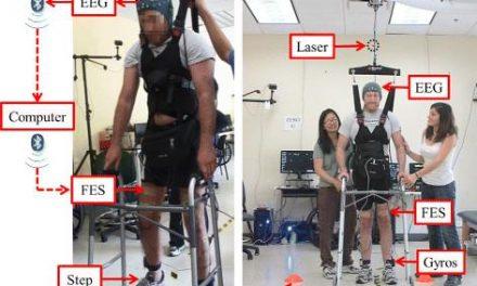Un hombre vuelve a caminar de nuevo tras cinco años de parálisis