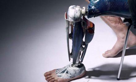 Prótesis con piel artificial para recuperar las sensaciones