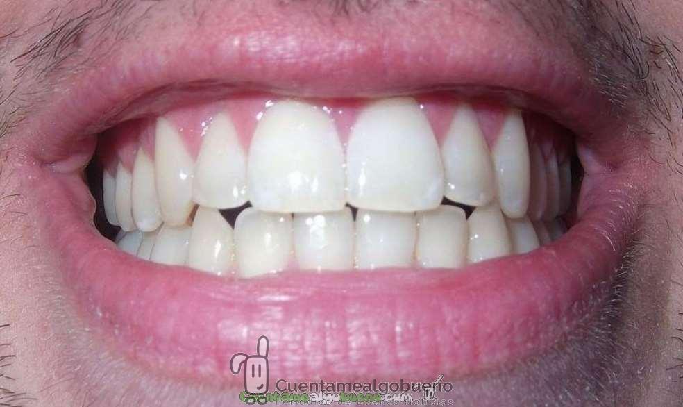 Nueva pasta de dientes reparadora