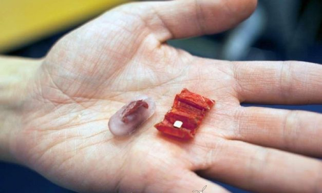 Mini-robot que extrae pilas ingeridas