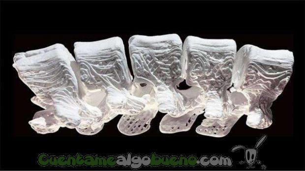 20161013-2-huesos-hiperelasticos
