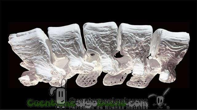 Imprimen huesos artificiales en 3D para reparar fracturas