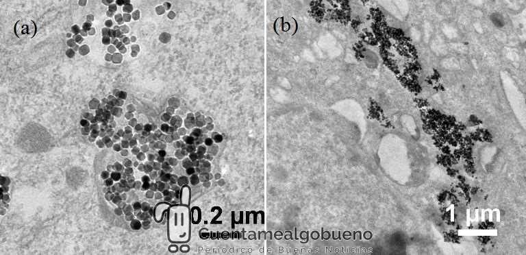 Nanopartículas magnéticas para luchar contra el cáncer