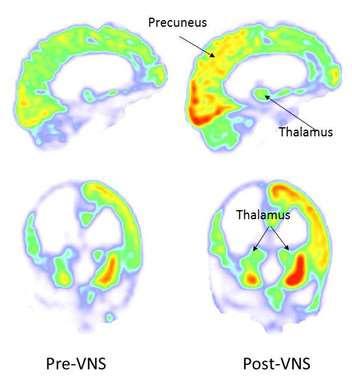 Imágenes de antes y después de la estimulación del nervio vago (a la derecha, post-VNS). Después de la estimulación, el metabolismo aumentó en el córtex parietal y occipital derecho, tálamo y cuerpo estriado. Foto: Corazzol et al.