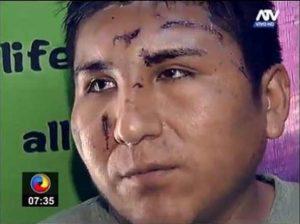 El heroico taxista José Antonio Alanoca Mamani quedó desfigurado al intentar evitar que su pasajera de ser violada. Foto: Perú21