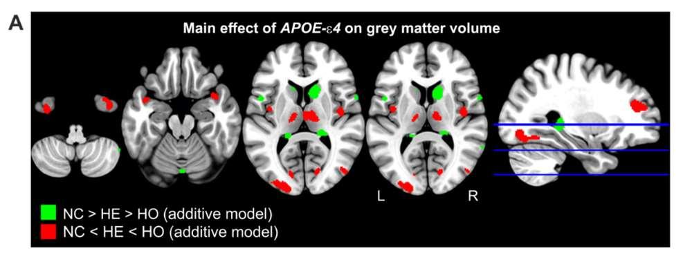 En el estudio, los investigadores del BBRC han detectado alteraciones morfológicas cerebrales en personas cognitivamente sanas portadoras del gen que confiere el mayor riesgo genético de desarrollar la enfermedad de alzheimer, el APOE-Ɛ4
