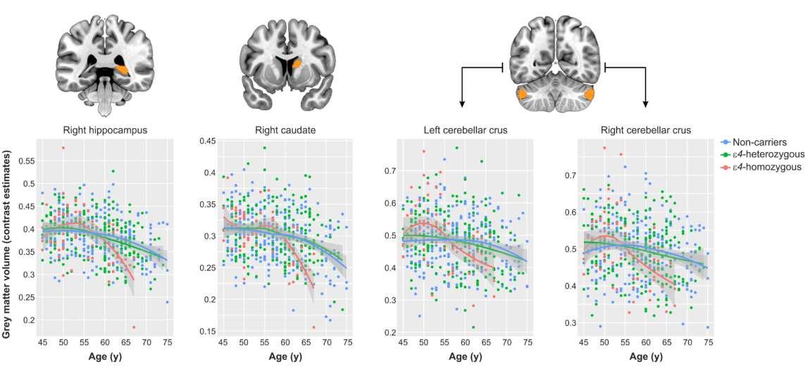 Las imágenes cerebrales de las personas homocigóticas Ɛ4 fueron comparadas con las de otros participantes con menor riesgo genético de desarrollar alzheimer, utilizando una técnica de neuroimagen denominada morfometría basada en vóxel