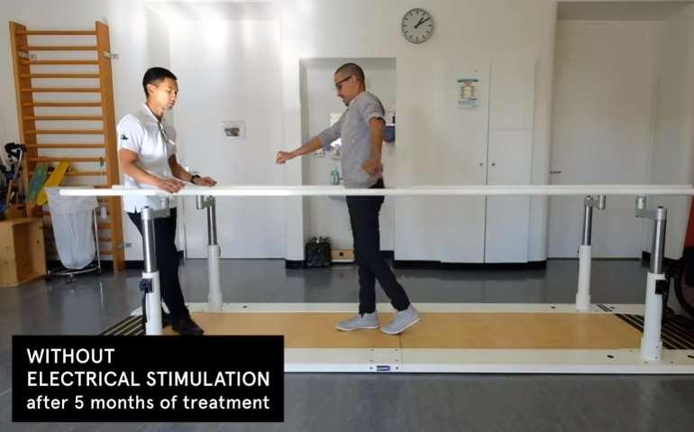 Dois cientistas suíços conseguiram que três pessoas paraplégicas voltassem a andar graças ao uso de implantes sem fio na medula espinhal