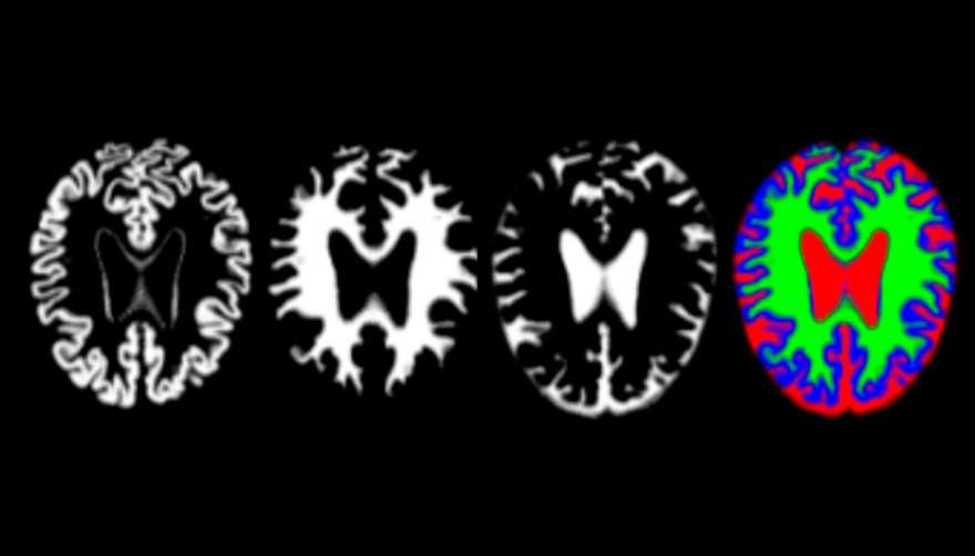 En el alzhéimer, los cambios en la etapa inicial son sutiles y es difícil distinguir los patrones mediante la evaluación radiológica convencional. Foto: UPM