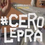 La campaña #CeroLepra reta a erradicar la lepra en 2030