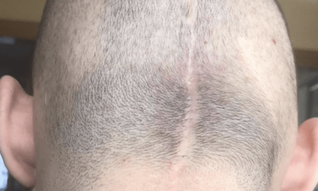 Un catalán que padece cáncer logra recaudar la cantidad necesaria para pagar su tratamiento capilar